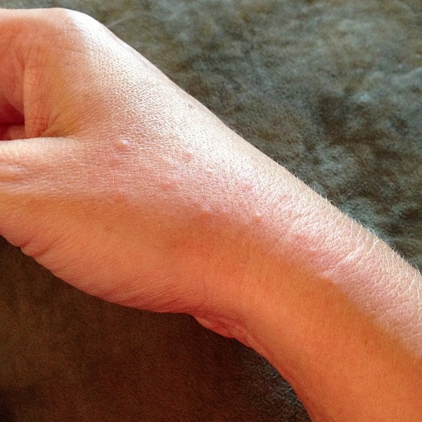 my hand rash from coconut allergy