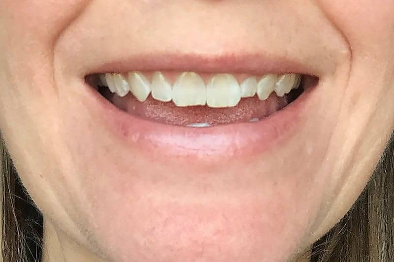 before picture of uneven teeth for veneers before and after