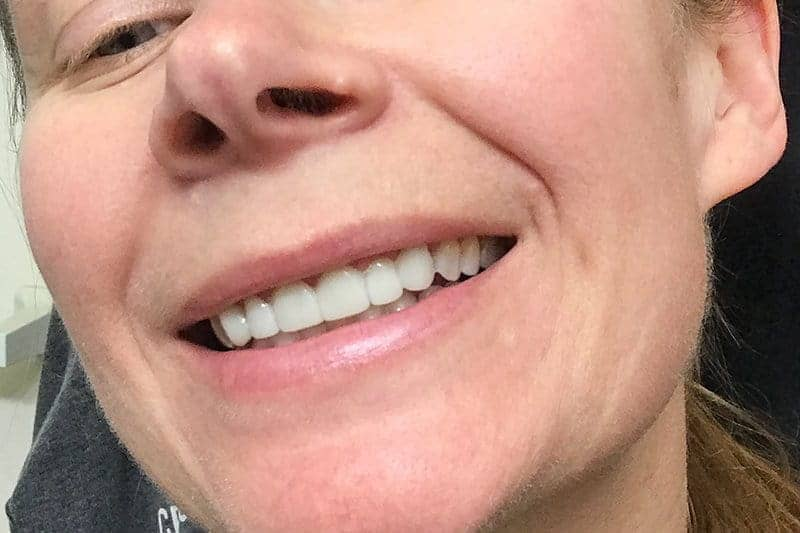 temporary porcelain veneers